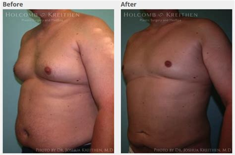 Loss of breast tissue and muscle mass forum on png 568x374